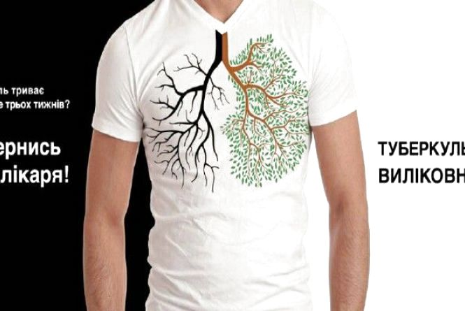 Єднаймося для подолання туберкульозу