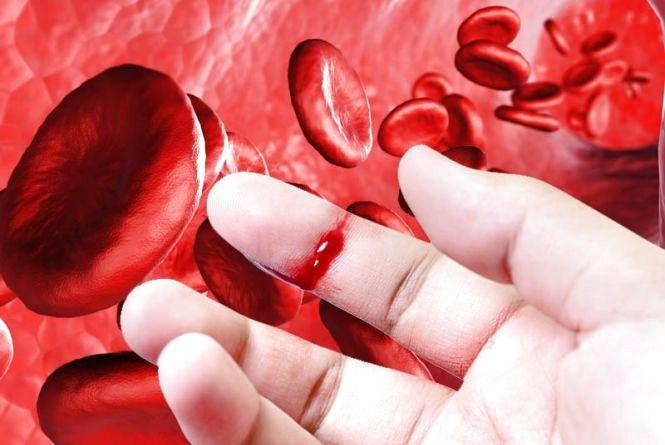 17 квітня: Всесвітній день боротьби з гемофілією