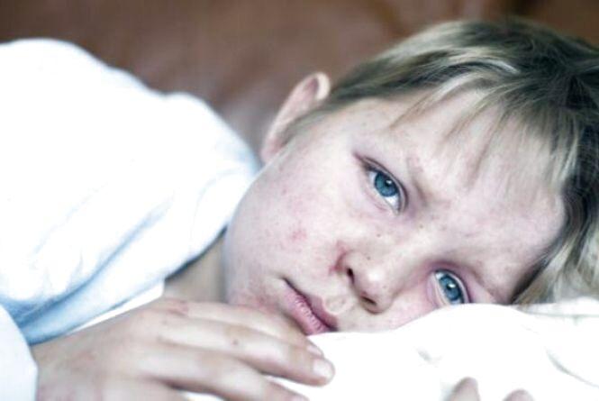 Кір, застуди, дифтерія: імунологи розповіли, до яких сезонних захворювань готуватися у вересні